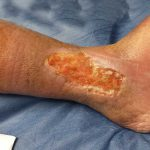 varicose ulcers