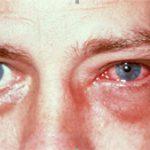 viral conjunctivitis treatment