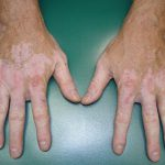 skin coloration disorders
