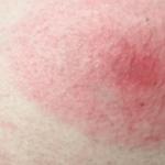 flea bite in humans