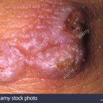 wart virus