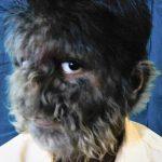 wolf skin diseases