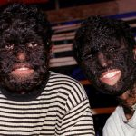 what is hypertrichosis