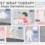 wet wrapping for eczema