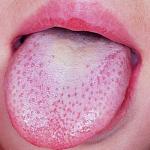 eruptive lingual papillitis