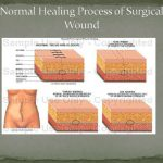 surgical wounds infection