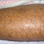 dry skin rash picture