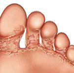 fungus between toes
