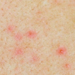 rashes caused by virus